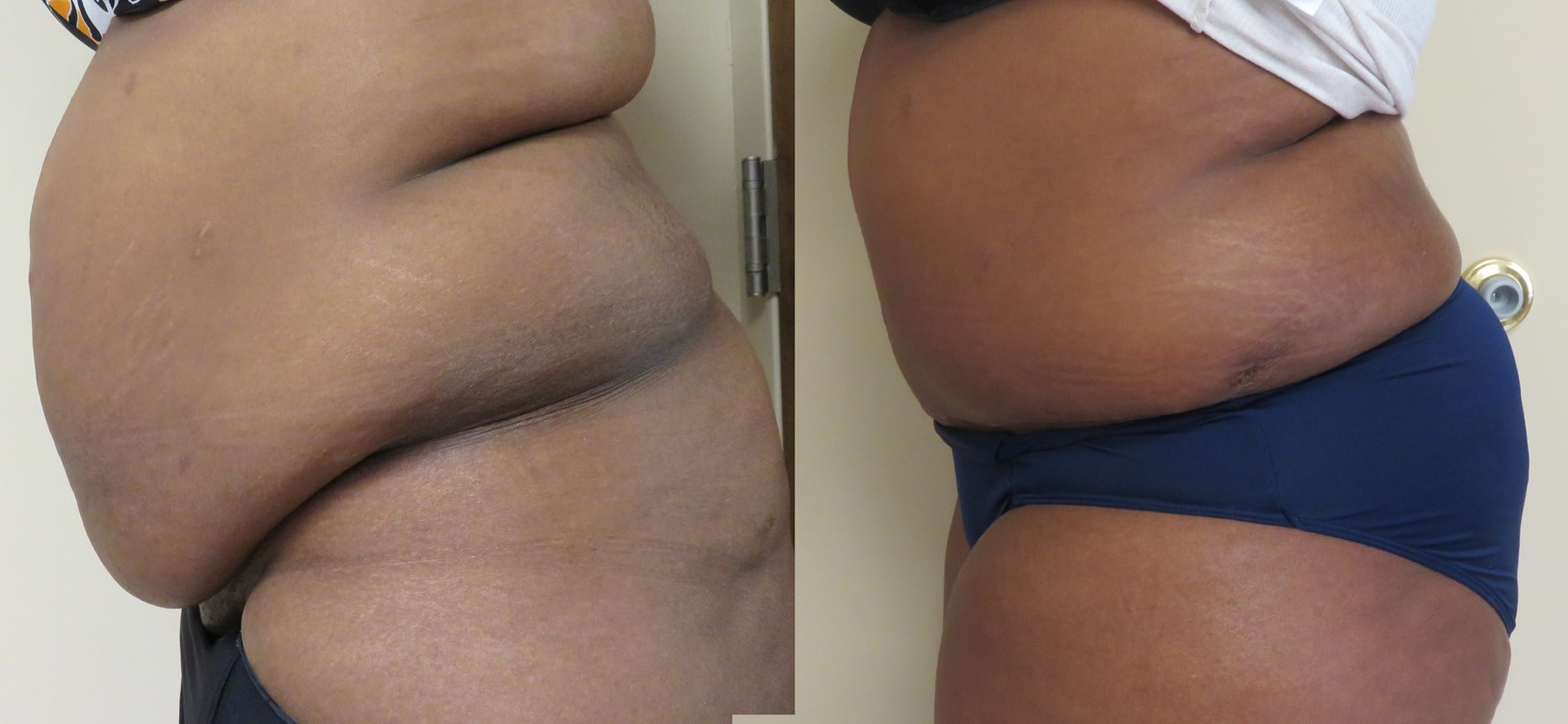 How much pain is associated with a Tummy Tuck?