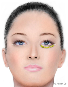 Illustration: The Traditional Lower Eyelid Incision - Female