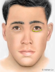 Illustration: The Traditional Lower Eyelid Incision - Male
