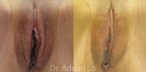 Labiaplasty patient Before and after number 3 Results may vary