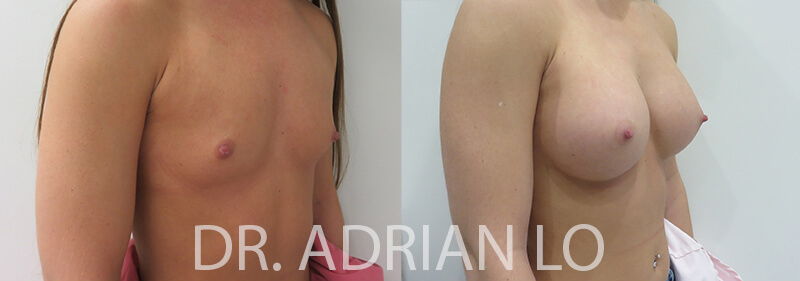 Breast Augmentation patient Before and after number 2 Results may vary