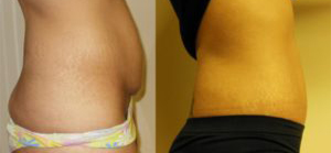 Tummy tuck patient Before and after number 1 Results may vary