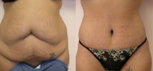 Tummy tuck patient Before and after number 3 Results may vary
