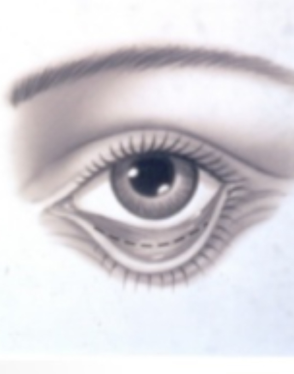 Eye with lower eyelid incision